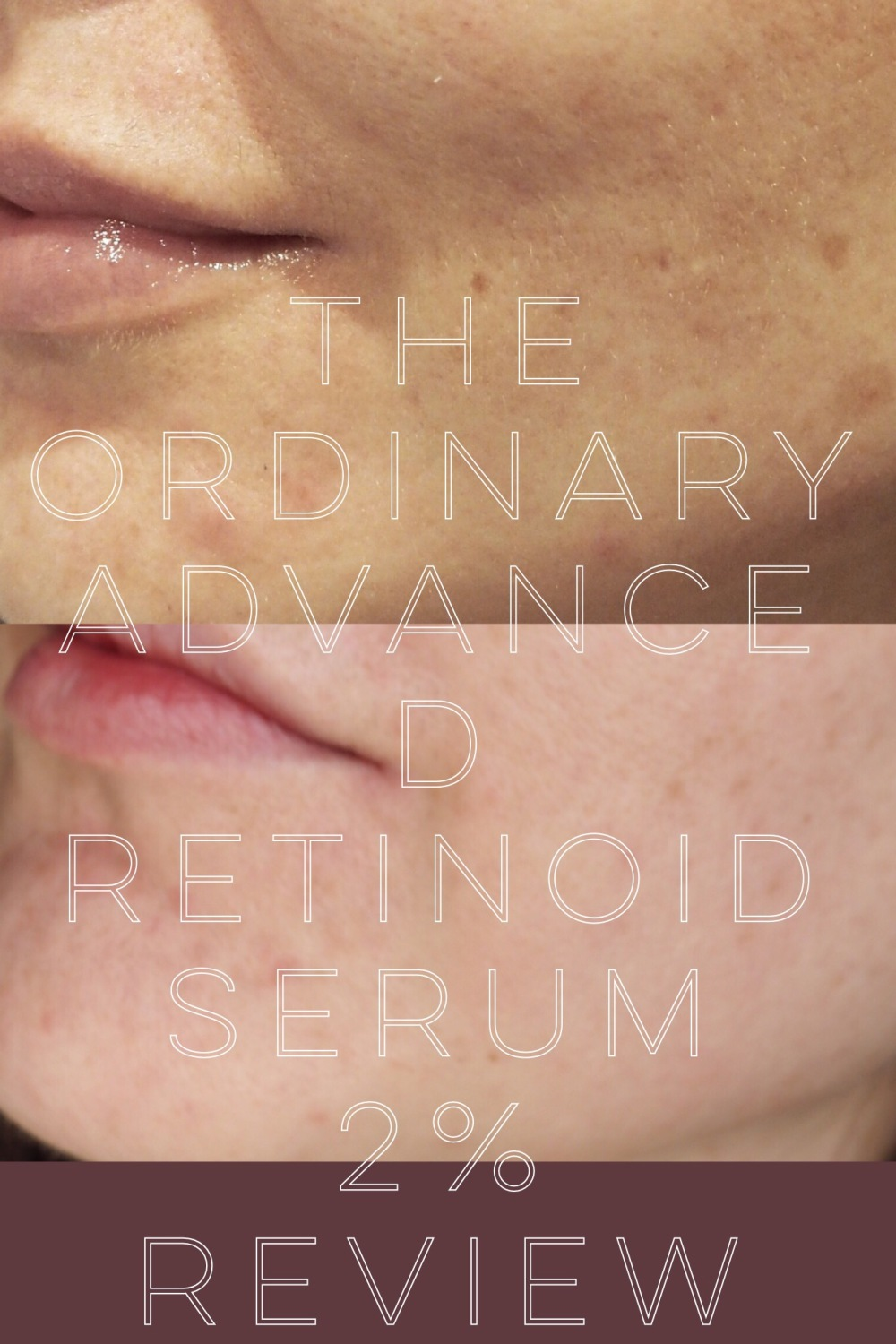 The Ordinary Advanced Retinoid Serum 2%- pinnable before and after picture