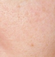New The Ordinary Colours Foundation close up of my skin