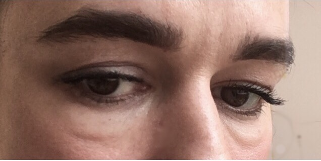 Puffy Eye Remedies- Close up of eye bags