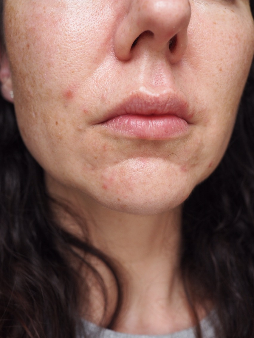 Skincare for Acne/Aging/Pigmentation- Ordinary Confusion- close up of spotty chin