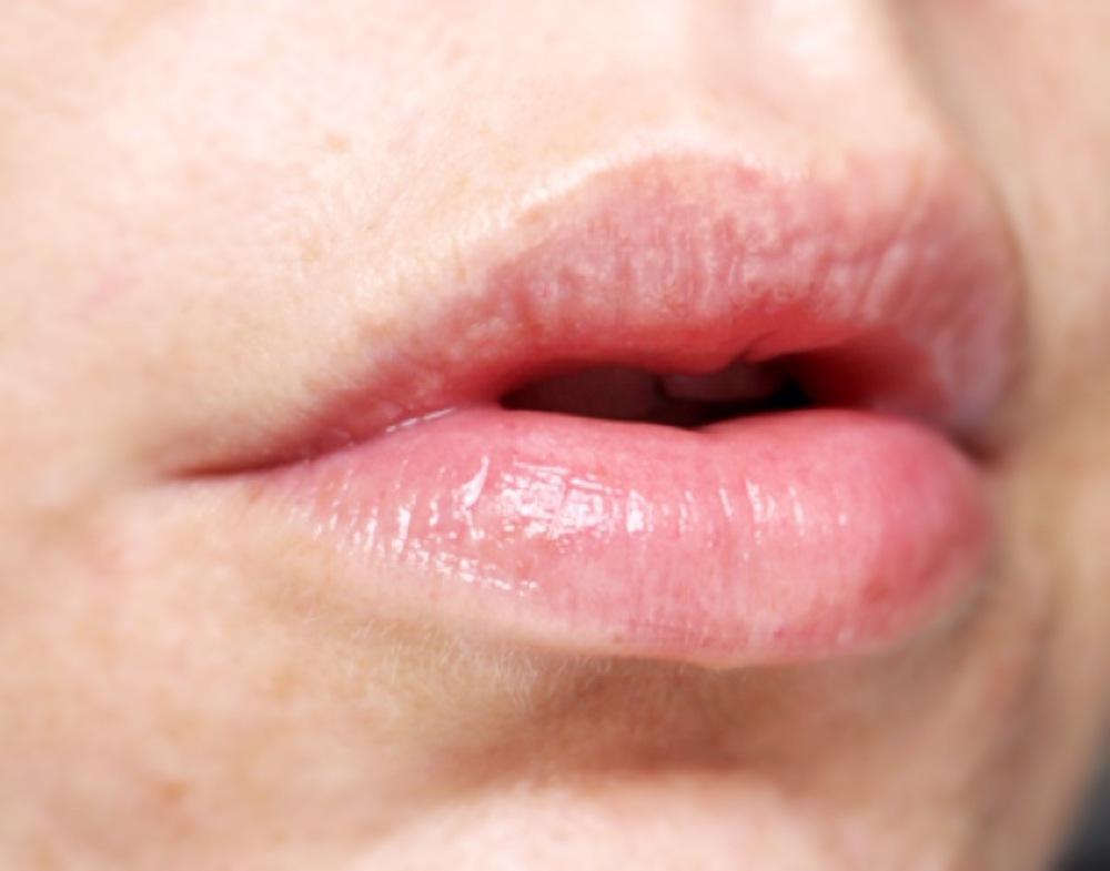 Balmkind Alpine Rose and Lysine Lipbalm- close up of lips slightly shiny